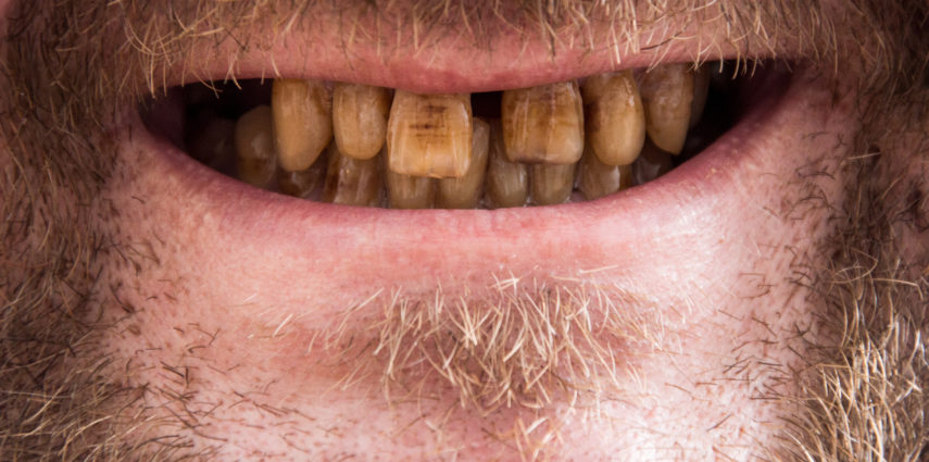 "Effects Of ""Smokeless"" Tobacco On Your Dental Health"