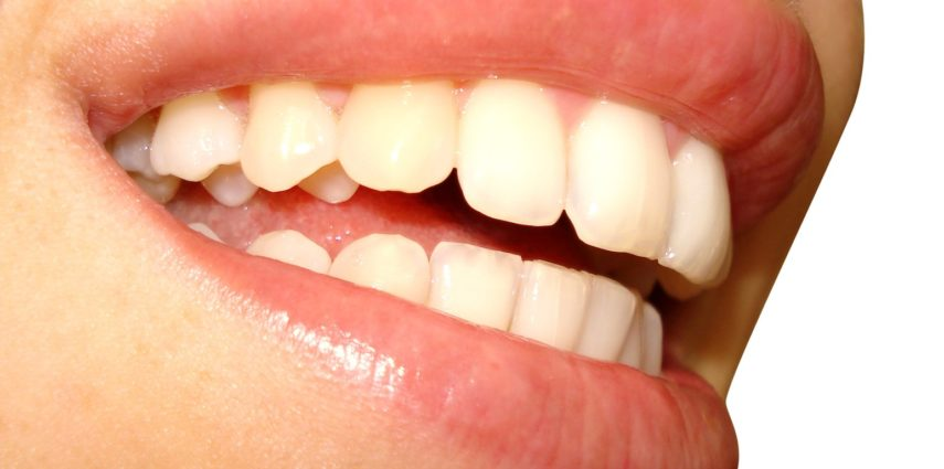 Good oral care means a regular brushing and dental flossing
