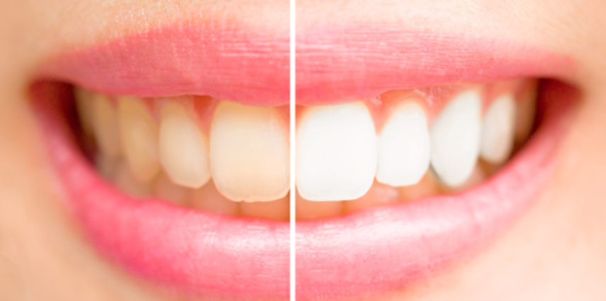 Are Your Yellow Teeth Making a Lasting Impression?